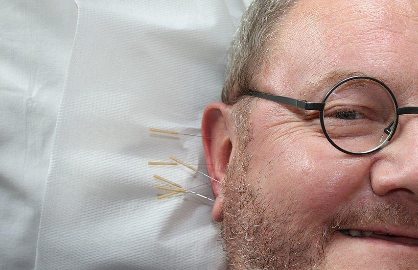 Wie Akupunktur beim Abnehmen hilft